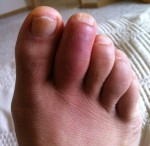 Gout in toe after 6 days
